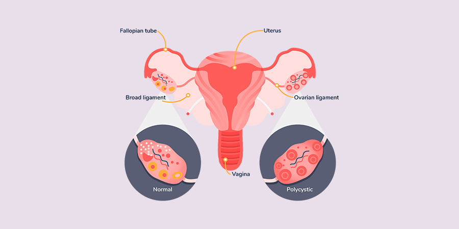 PCOS Info Graphic
